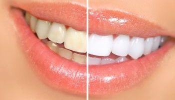 Curso-Vigilancia-Epidemiologica-Bucodental-Prl-Clinicas-Dentales
